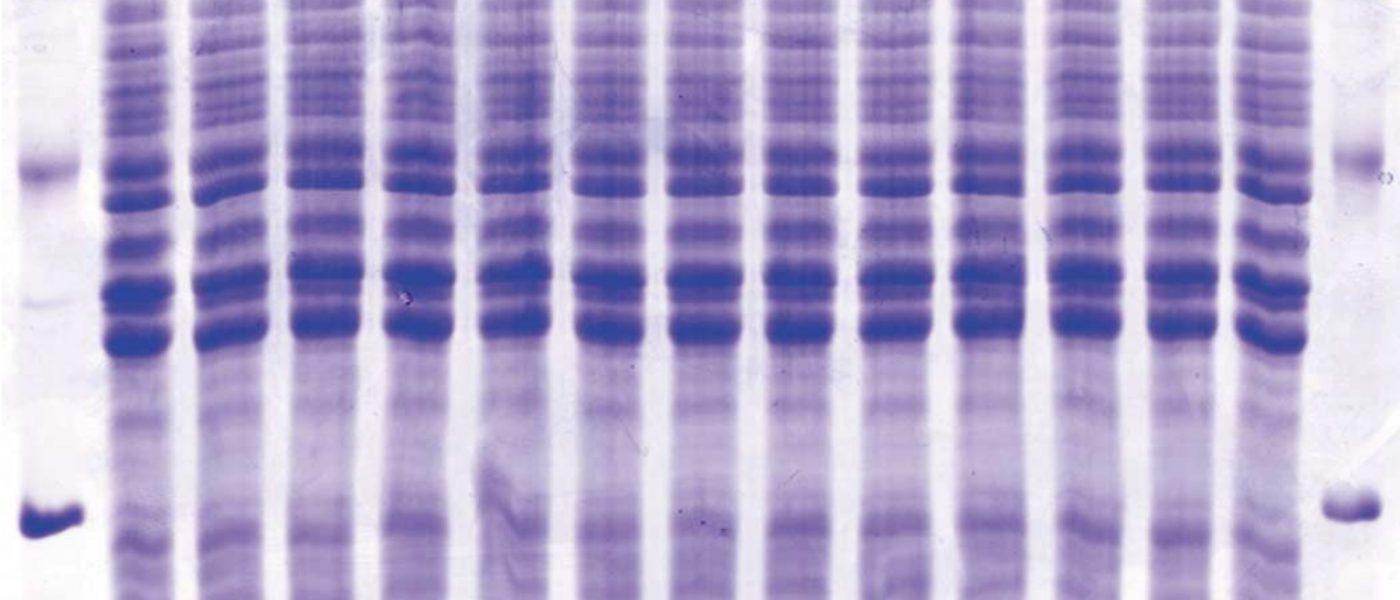 Analisis Pita (Band) DNA Menggunakan Gel-Pro Analyzer